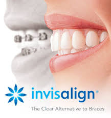 Invisalign is the best alternative to dental braces, Meet Dr. Koshki in Santa Monica, CA