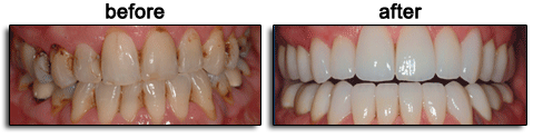 Porcelain Veneers / Lumineers treatment before and after results - Dr. Koshki