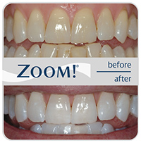 Know about Dental Clear Correction procedure whitening Service in Santa Monica.